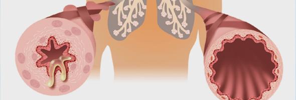 Бронхиальная астма интермиттирующая: лечение и профилактика