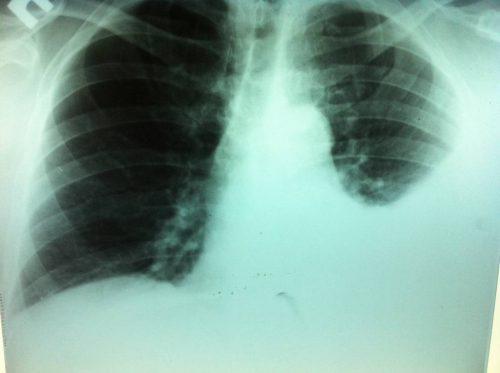 Левостороння пневмония
