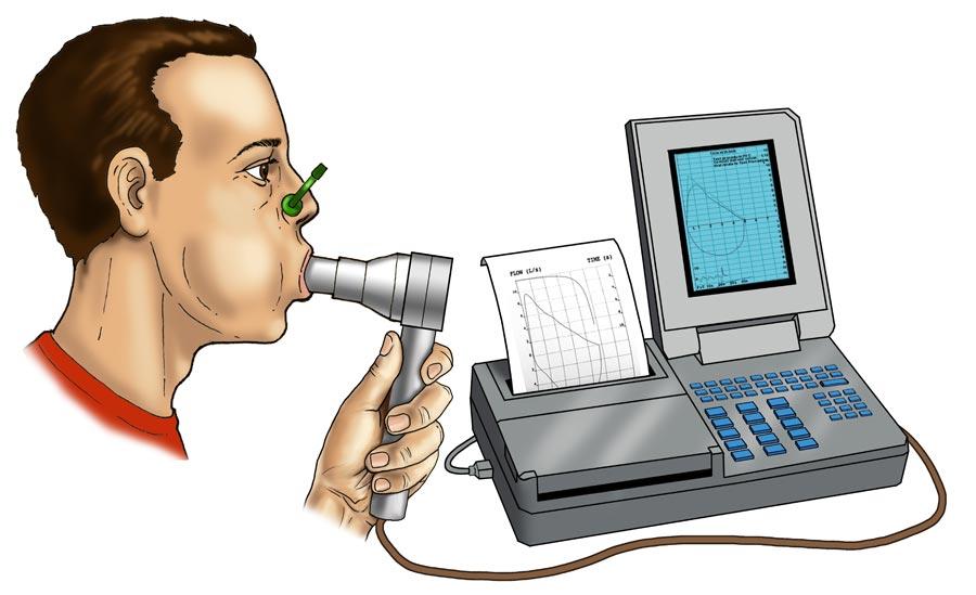 спирография при бронхиальной астме