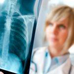 рентген при бронхите