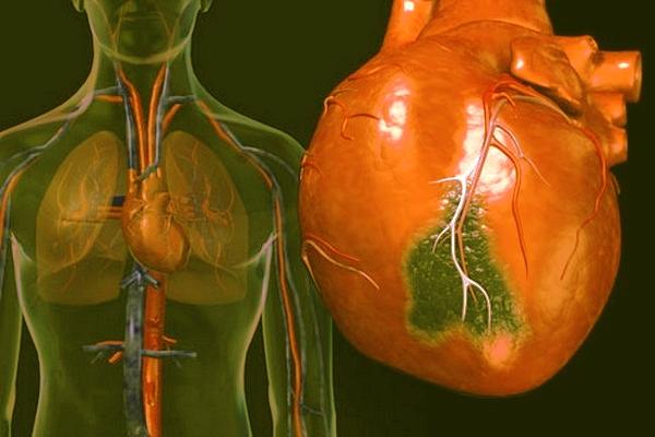 Воспаление лёгких