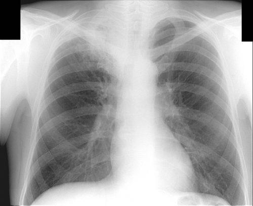 Тотальная пневмония
