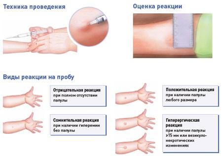 Техника постановки Манту, трактовка ответа иммунитета