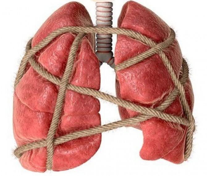 Устойчивый туберкулез