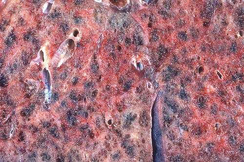 Миллиарный туберкулез