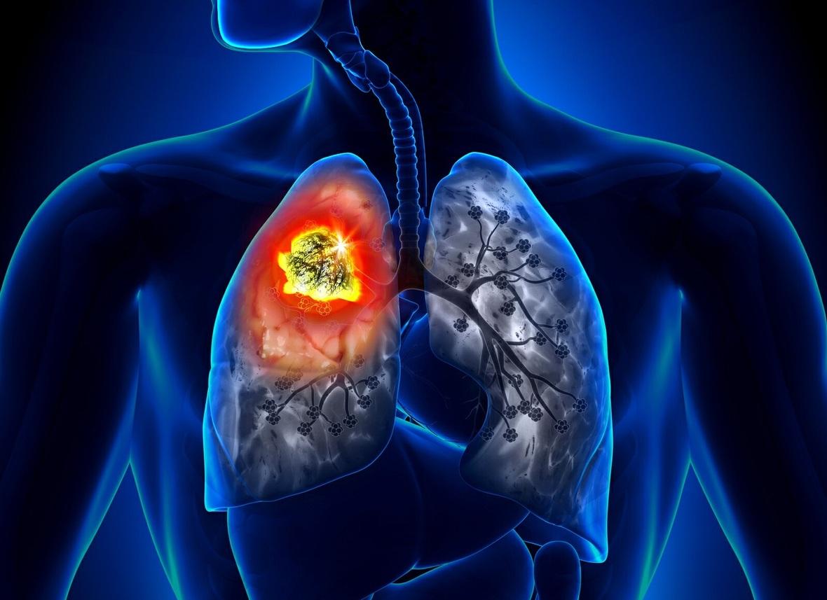 Отличие рака легких от туберкулеза