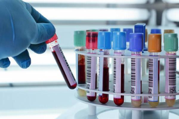 Анализ на туберкулез по крови гемотест