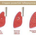 Что будет если не лечить туберкулез
