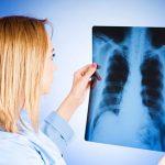 Знаменитости болевшие туберкулезом