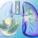 Активный туберкулез
