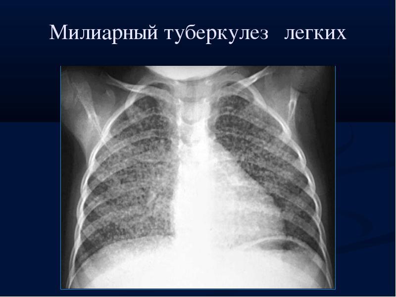 Милиарный туберкулез