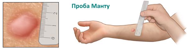 Манту