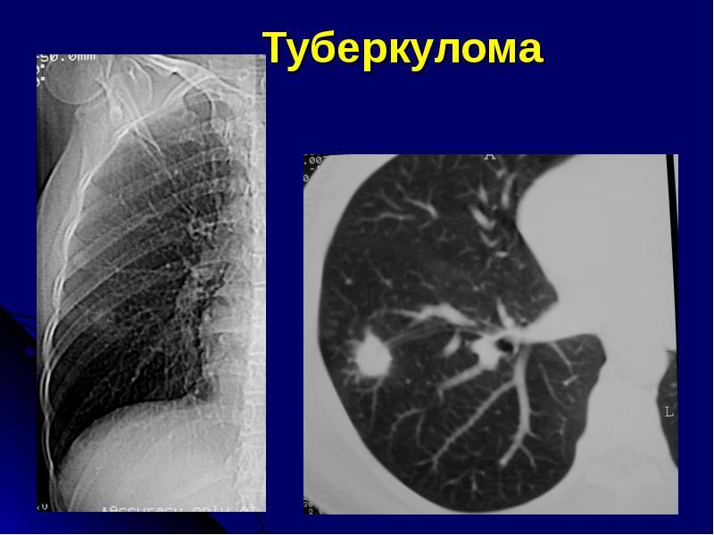 Туберкулома