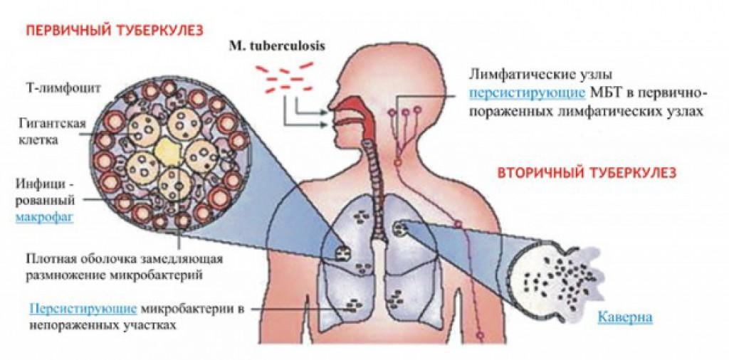 Первичный туберкулез