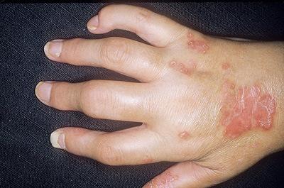 Туберкулёз кисти