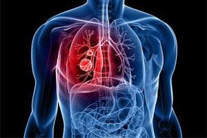 Различные формы туберкулеза