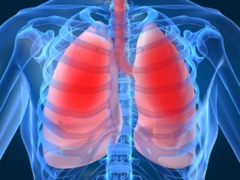 Заражение тканей туберкулёзом