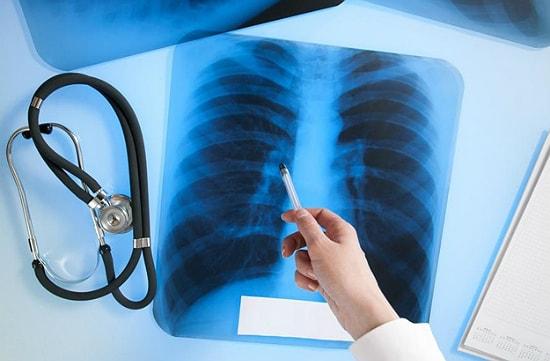 Туберкулёз легких на снимке