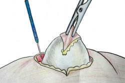 Удаление кисты из мочки уха