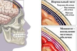 Схема менингита