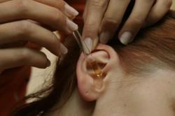 Лечение грибка в ушах каплями
