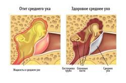Схема отита среднего уха