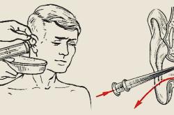 Схема промывания уха