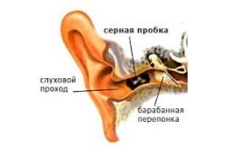 Расположение серной пробки в ухе