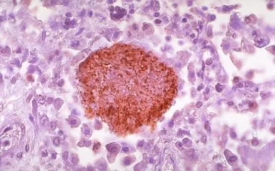 Основные симптомы и причины пневмоцистной пневмонии