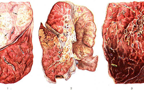 Пройдите бесплатный онлайн-тест на пневмонию