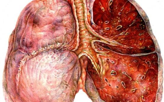 Тест: Насколько сильно вы подвержены пневмонии?