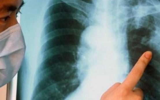7 первых признаков заболевания туберкулезом