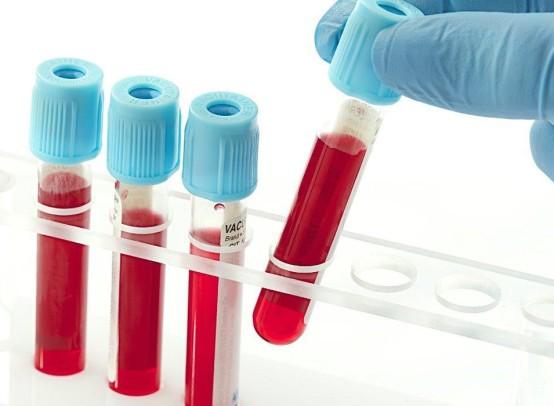 Анализ крови на туберкулез по современной методике