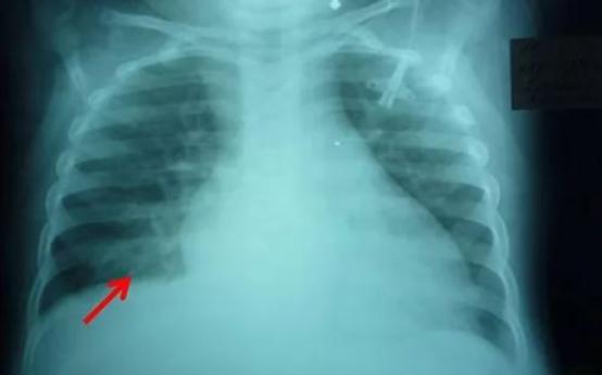 Основные симптомы очаговой пневмонии и способы лечения