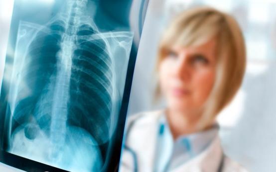 Для чего нужен рентген при бронхите и что он показывает