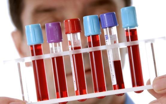Можно ли сдать анализ крови на туберкулез вместо Манту