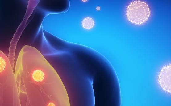 Лечение и профилактика легионеллезной пневмонии