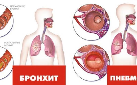 Характерные признаки по которым можно бронхит отличить от пневмонии