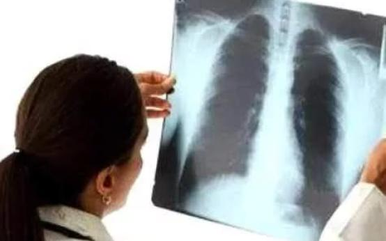 5 главных признаков пневмонии у ребенка без температуры