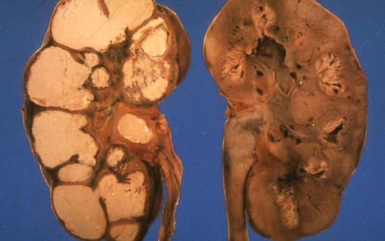 Как проявляется туберкулез почек и мочевыводящих путей