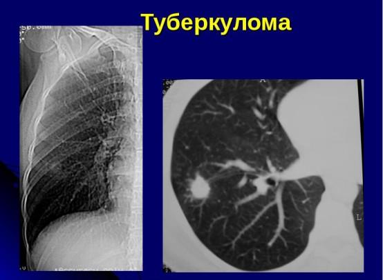 Чем туберкулома отличается от туберкулеза и можно ли ее вылечить