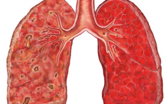 Что такое тотальная пневмония и какие у нее причины