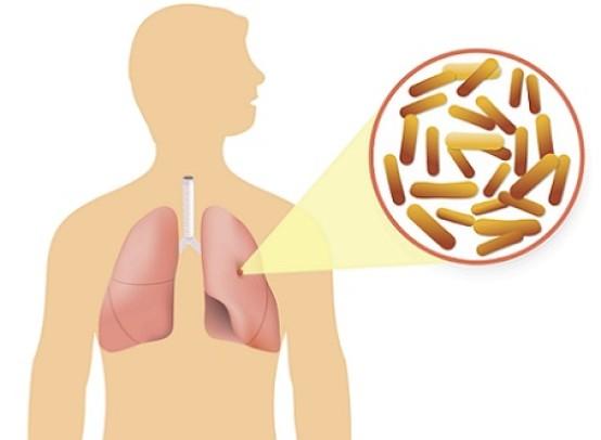 Заразна ли закрытая форма туберкулеза и как он передается от человека к человеку