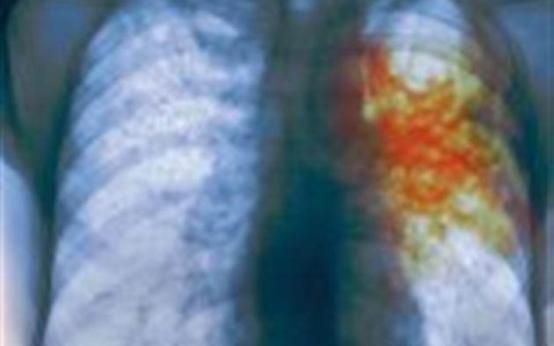 Пройдите бесплатный онлайн-тест на туберкулез