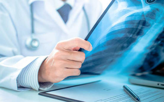 Что считается вреднее для ребенка — рентген или Манту