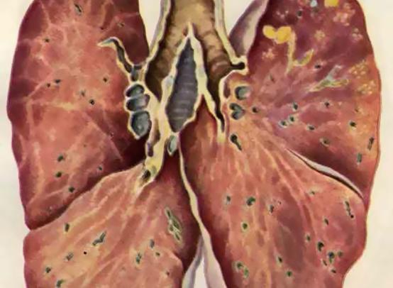 Тест: Насколько сильно вы подвержены туберкулезу?
