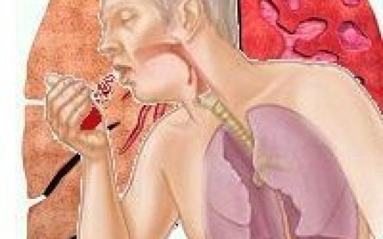 6 главных причин почему может быть кровь в мокроте при бронхите