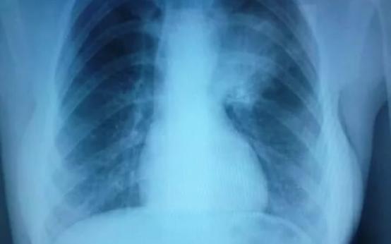 Что такое левосторонняя пневмония, как протекает и как лечится