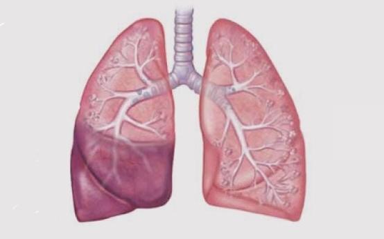 Основные причины и симптомы сегментарной пневмонии