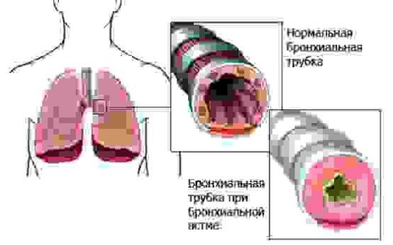 Эффективно ли применение антибиотиков при бронхиальной астме